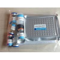Buy cheap Human Collagen Type Ⅳ(COL Ⅳ) ELISA Kit from Wholesalers