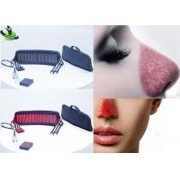 China Rosacea Redness Laser Therapy For Stretch Marks , Anti Aging Laser Mark Removal on sale