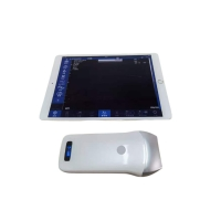 China Portable Ultrasound Scanner 10MHZ 80E Linear Array Probe factory